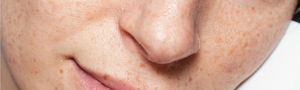 肌老化は紫外線が原因